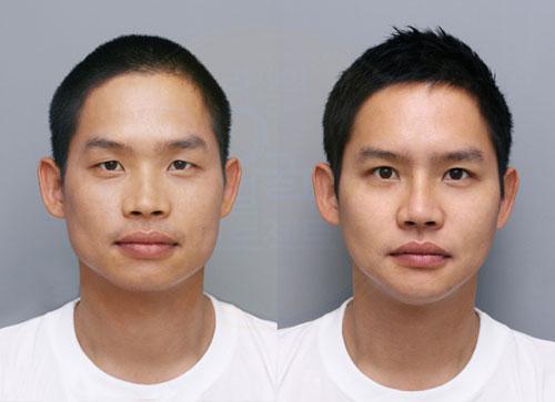 整形前(左)と整形後(右)のコメディアンのキム・ヒョンイン。