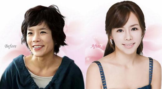 両あご手術を行った女優のシニ(手術前が左)。