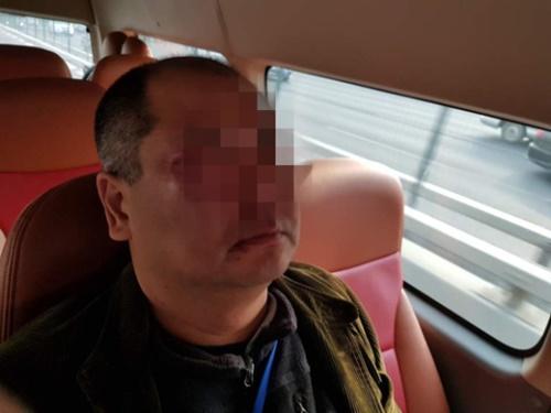 韓国の写真記者が14日午前、北京国家会議中心Bホールで開かれた「韓中経済・貿易パートナーシップ開幕式」からスタートアップ館に移動中だった文在寅大統領を取材していたところ、中国側警護員に一方的に暴行されて顔がひどく腫れている。(写真=青瓦台写真記者団)