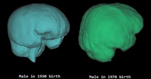 1930年代、1970年代の韓国人の頭蓋腔の仮想3次元モデル。(写真=高麗大学医療院)