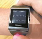 アップルより3年進んだ韓国製「心電図時計」規制解除