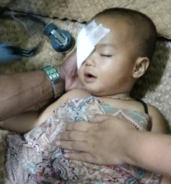 3月27日にヤンゴン近郊で軍警のゴム弾を目に受けガーゼを貼った1歳の女児。[写真 ミャンマーナウツイッター]